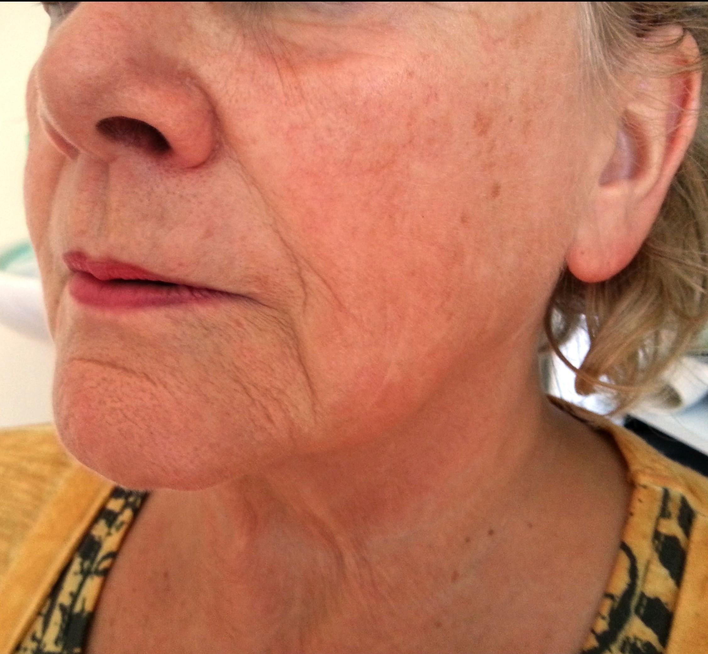 Die Rezensionen nach der Laseroperation auf die Augen